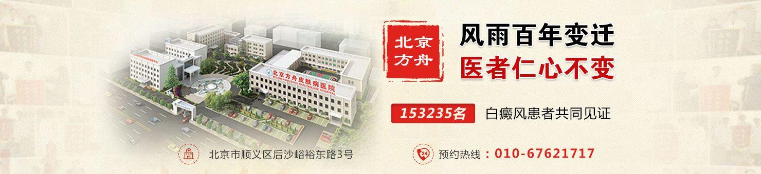 北京治疗白癜风医院