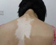 女性背部白癜风都需要注意什么?